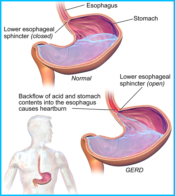 Chart Of Acid Reflux Disease